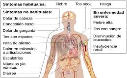 sintomas coronavirus